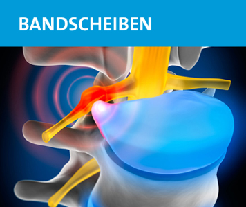 wzfr-orthopaede-wirbelsaeulenspezialist-roggendorf-bandscheibenoperation