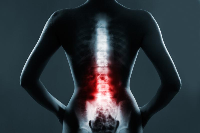 Die Schmerzen bei einer Degeneration der Wirbelsäulengelenke können vom Betroffenen oft nur schwer lokalisiert werden